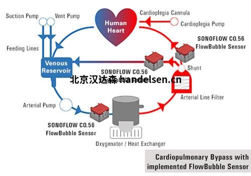 Kardiopulmonaler-Bypass_SONOFLOW-CO.56-Pro-Flow-Bubble-Sensor_SONOTEC